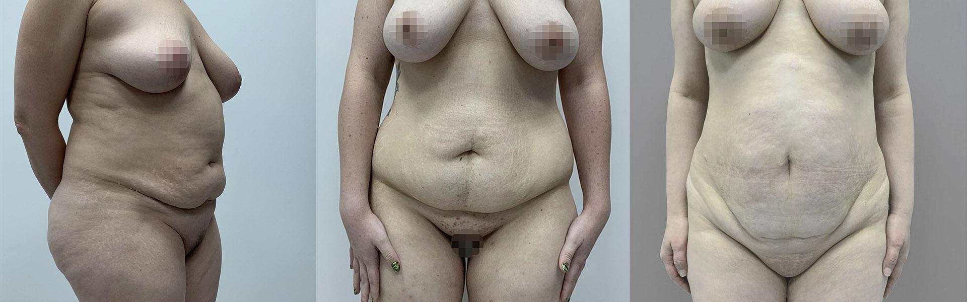 Пластическая хирургия после похудения