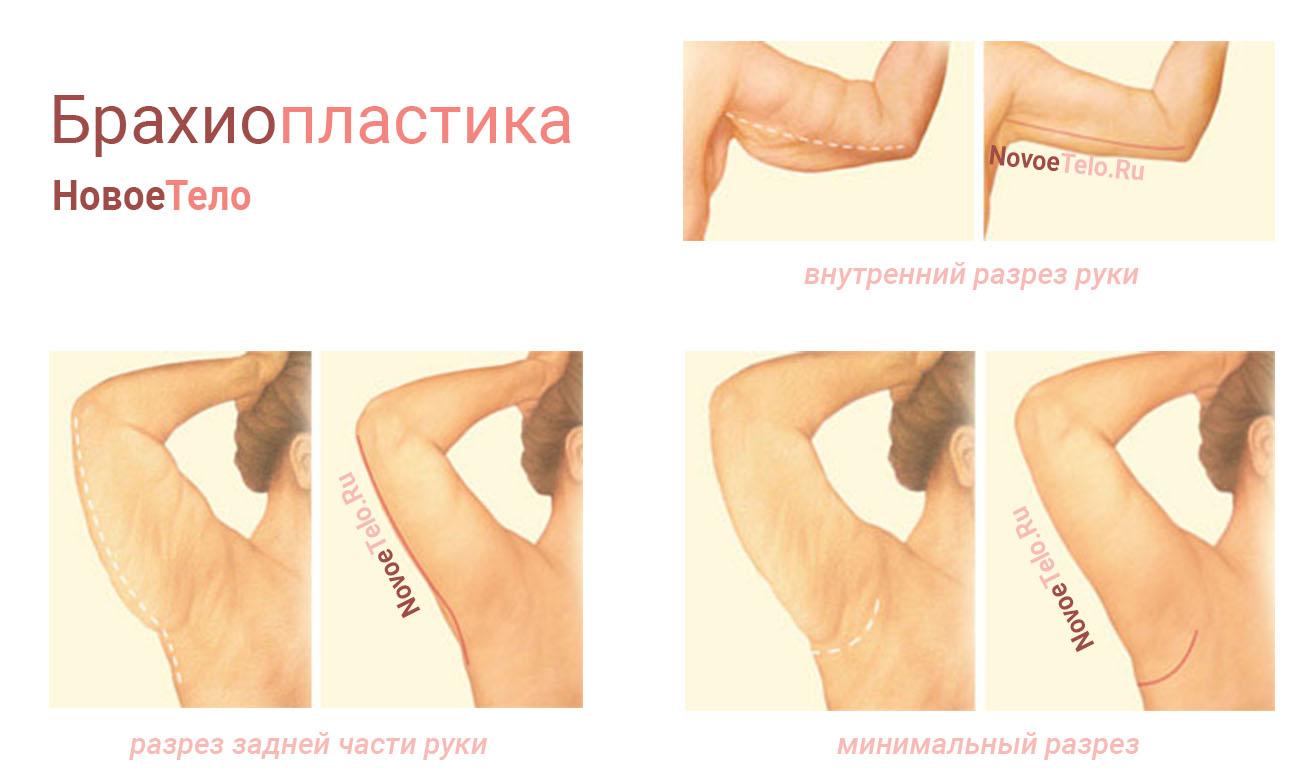 Брахиопластика (подтяжка рук)