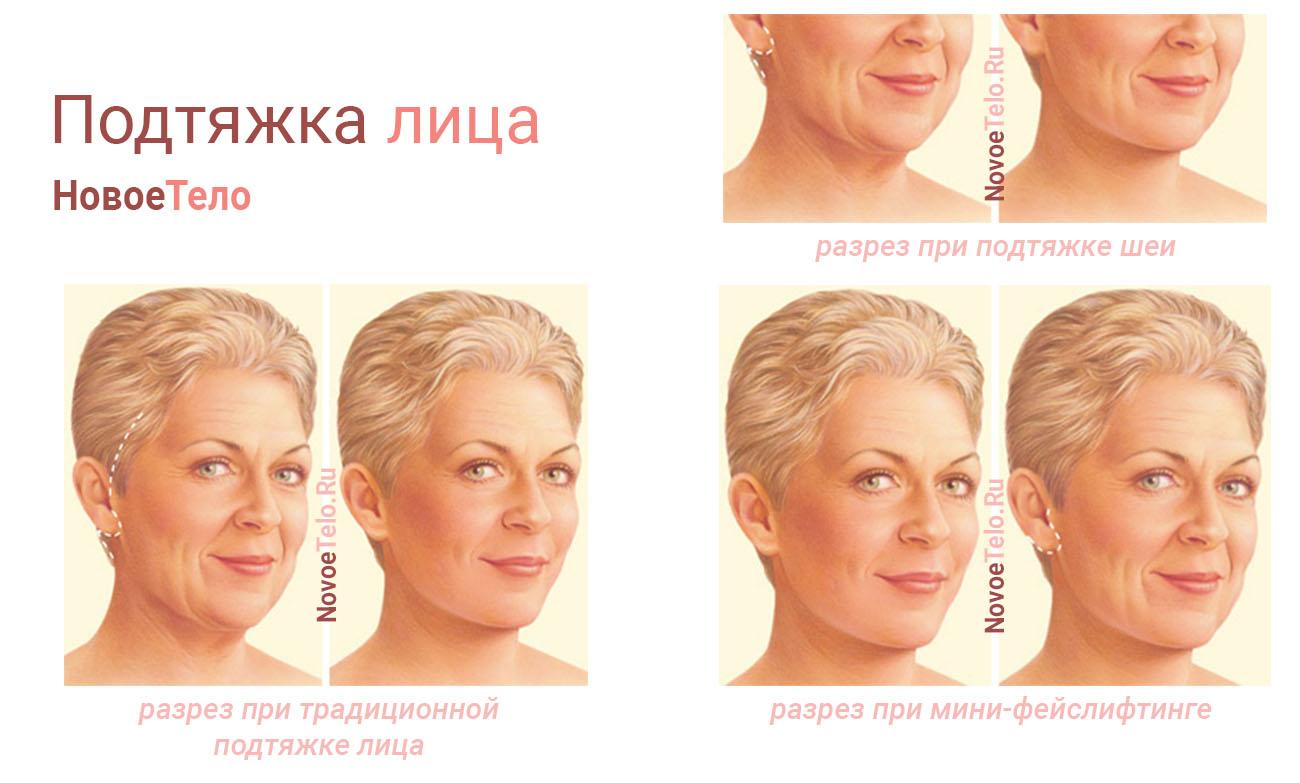 Подтяжка лица (фейслифт)