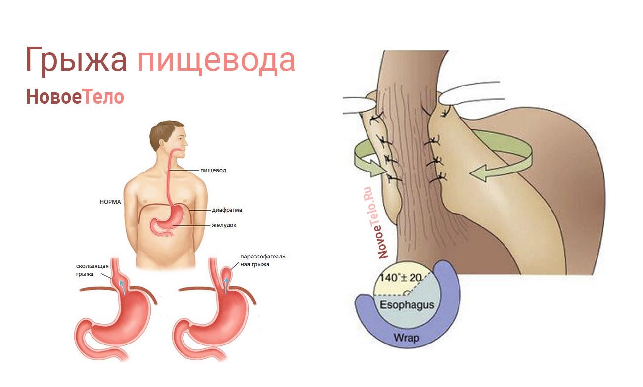 лечение грыжи пищевлда