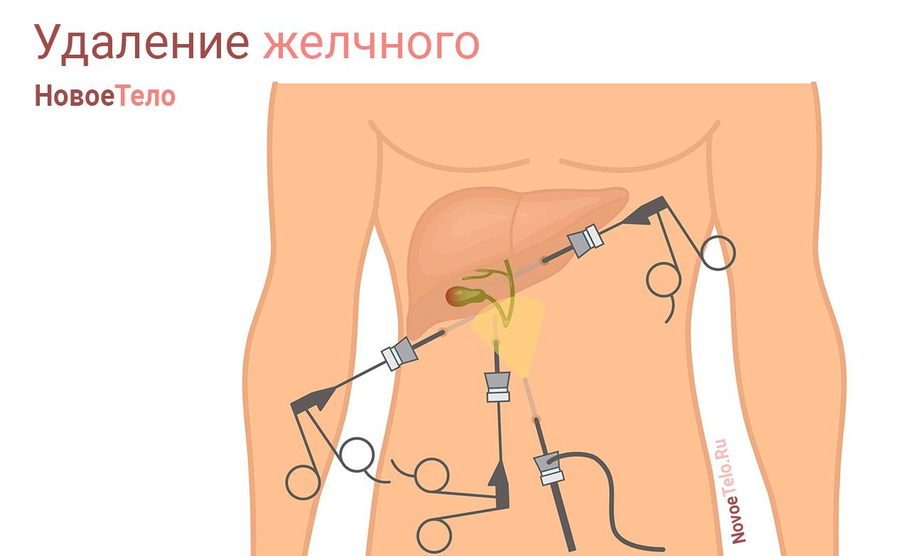 операция удаление желчного