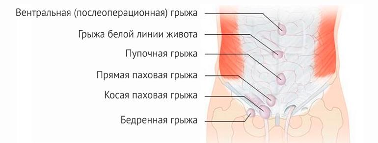 Герниопластика (ушивание грыж брюшной стенки)